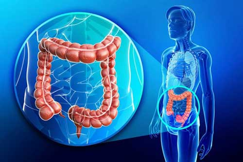 Colorectal tumors exacerbated by mouth microbes