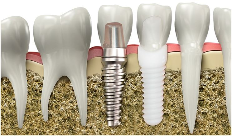 Zirconia Promises Superior Strength and Aesthetics in Dental Implants