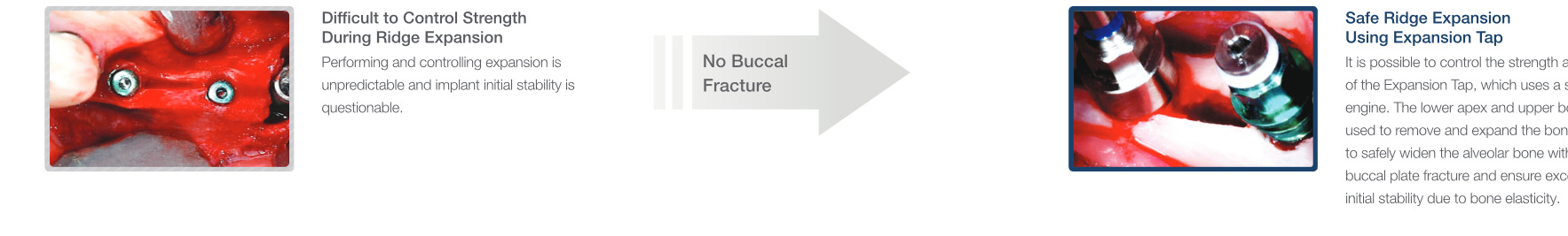 ایمپلنت،فیکسچر،implant،fixture