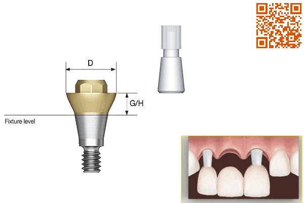implant,Convertible abutment,Osstem,آستم,اوستم